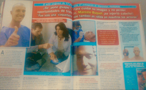 Marcelo Buquet se hace un microinjerto de cabello en Eikona, reportaje de TVNotas