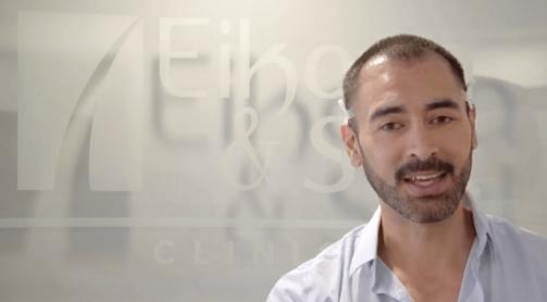 Sebastián Ferrat y su microinjerto de cabello en Eikona