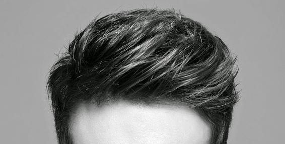 10 datos importantes sobre la perdida de cabello