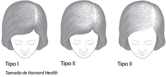 Tipos de alopecia femenina