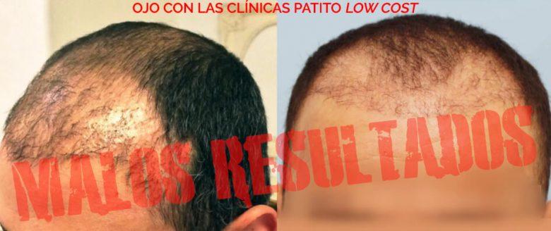 Cuidado con las clínicas patito de injerto de cabello