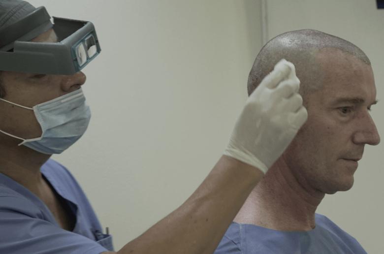 El actor Marcelo Buquet durante su procedimiento de microinjerto de cabello en Eikona & Styl