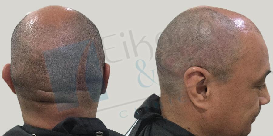 Testimonio de paciente microinjerto de cabello