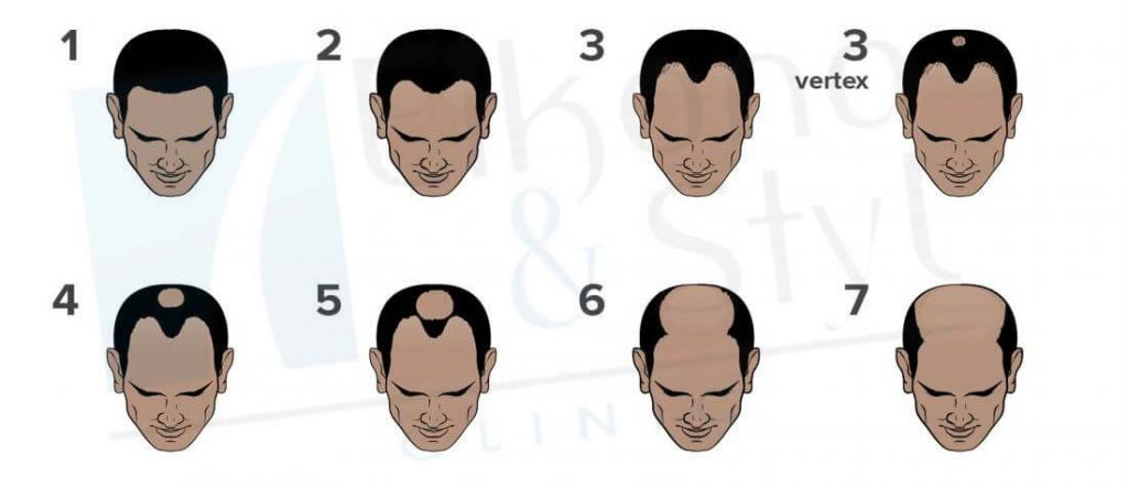 Escala de calvicie masculina Hamilton-Norwood