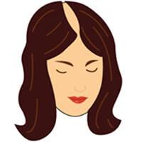 Etapa 4 escala de calvicie femenina Savin