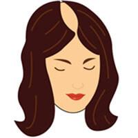 Etapa 5 escala de calvicie femenina Savin