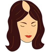 Etapa 6 escala de calvicie femenina Savin