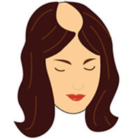 Etapa 7 escala de calvicie femenina Savin